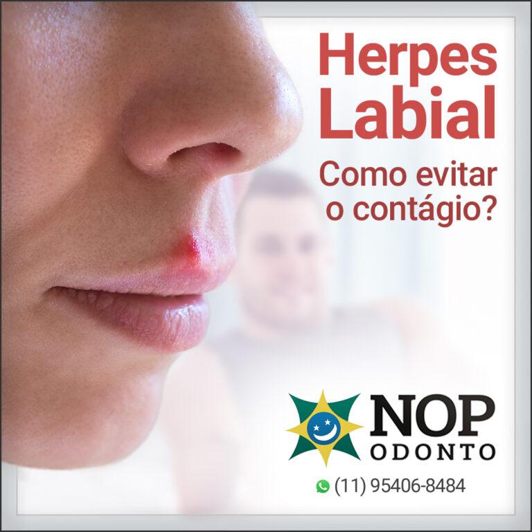 Herpes Labial - Como evitar - artigo NOP Odonto